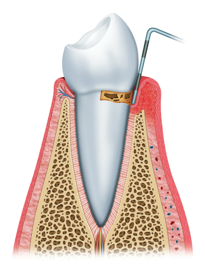 Stages of Gum Disease Merced, CA